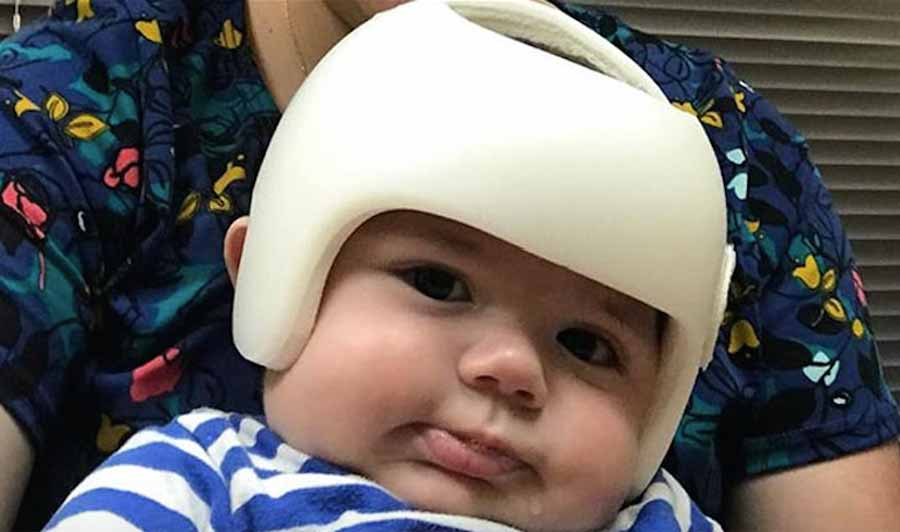 Família passa a usar capacetes para apoiar bebê de 4 meses