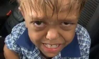 Menino que queria se matar por bullying recebe apoio mundial