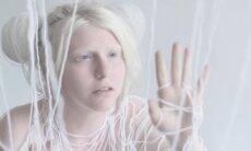 Fotógrafa viaja o mundo para registrar a beleza das pessoas com albinismo