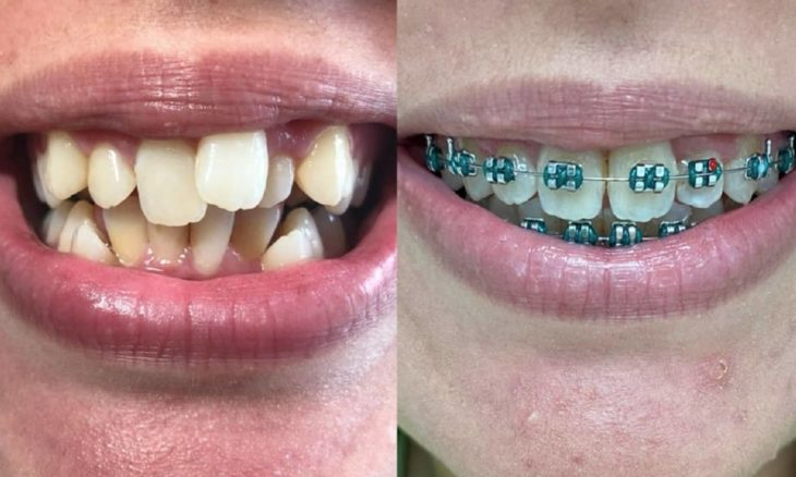 15 fotos que exibem o antes e depois surpreendente de sorrisos